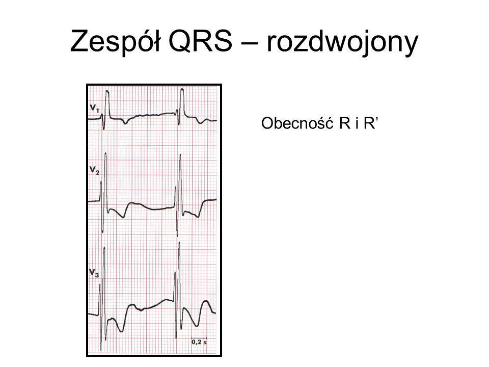 Zespół QRS – rozdwojony Obecność R i R'