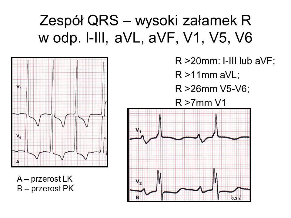 Zespół QRS – wysoki załamek R w odp. I-III, aVL, aVF, V1, V5, V6 R >20mm: I-III lub aVF; R >11mm aVL; R >26mm V5-V6; R >7mm V1 A – przerost LK B – prz