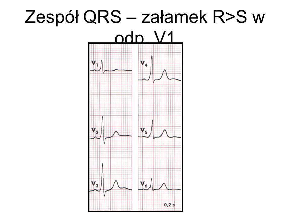 Zespół QRS – załamek R>S w odp. V1