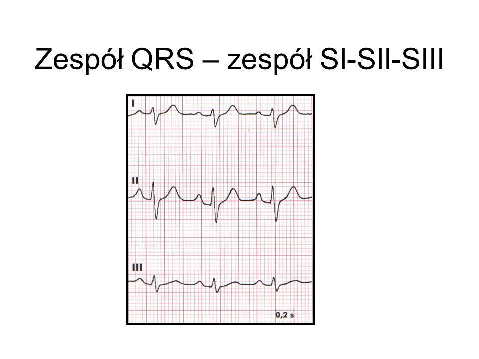 Zespół QRS – zespół SI-SII-SIII