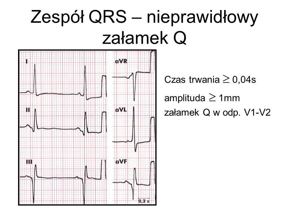 Zespół QRS – nieprawidłowy załamek Q Czas trwania  0,04s amplituda  1mm załamek Q w odp. V1-V2