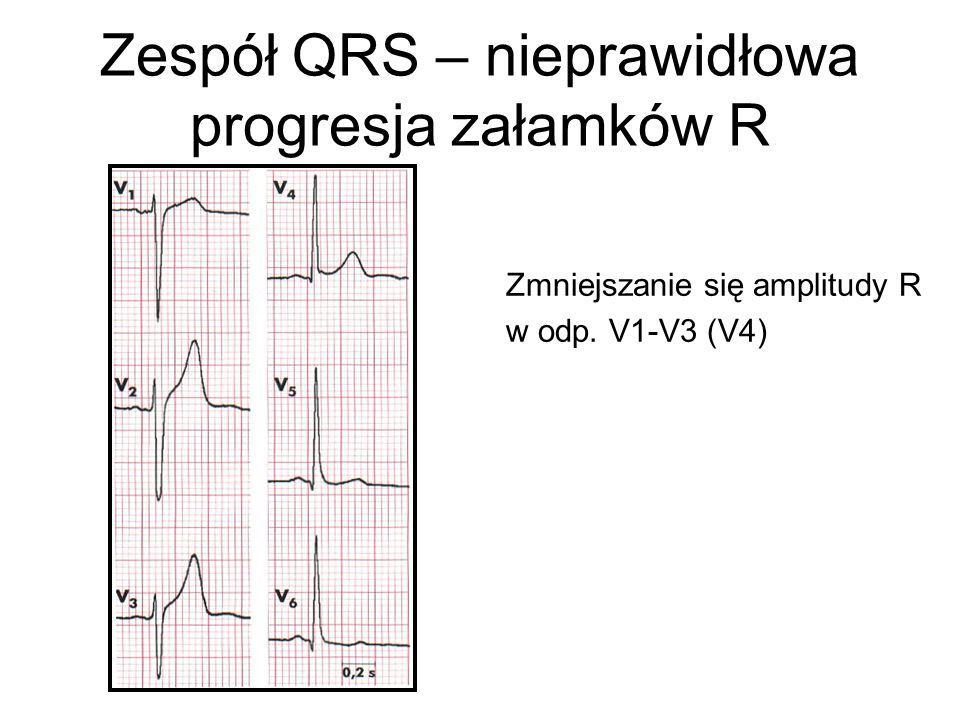Zespół QRS – nieprawidłowa progresja załamków R Zmniejszanie się amplitudy R w odp. V1-V3 (V4)