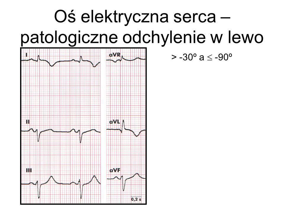 Oś elektryczna serca – patologiczne odchylenie w lewo > -30º a  -90º