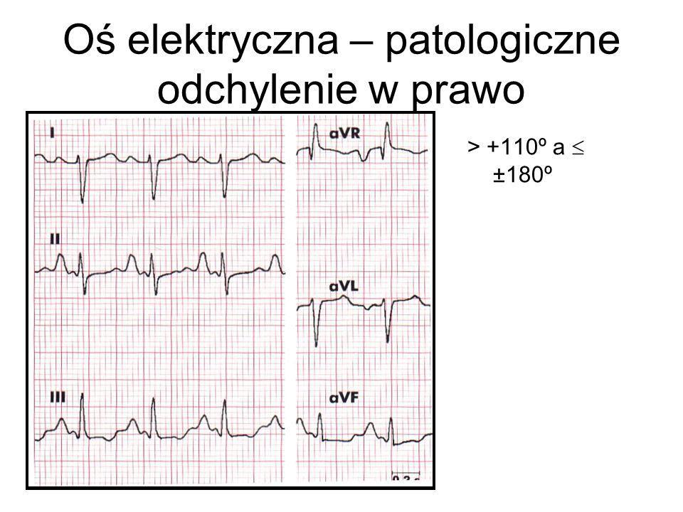 Oś elektryczna – patologiczne odchylenie w prawo > +110º a  ±180º