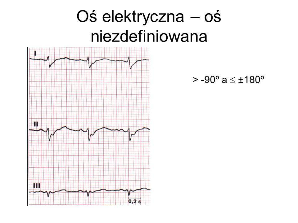 Oś elektryczna – oś niezdefiniowana > -90º a  ±180º