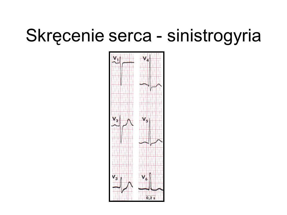 Skręcenie serca - sinistrogyria
