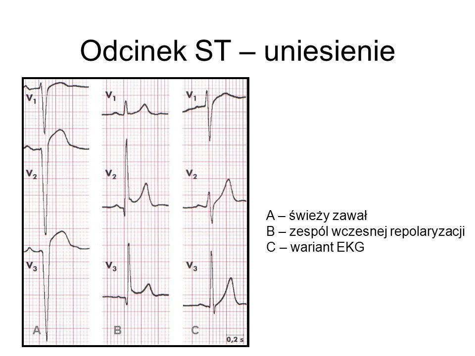 Odcinek ST – uniesienie A – świeży zawał B – zespól wczesnej repolaryzacji C – wariant EKG A B C