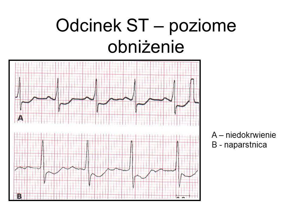 Odcinek ST – poziome obniżenie A – niedokrwienie B - naparstnica