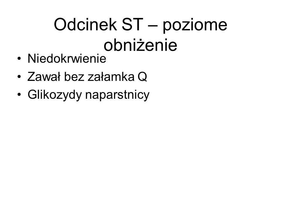 Odcinek ST – poziome obniżenie Niedokrwienie Zawał bez załamka Q Glikozydy naparstnicy