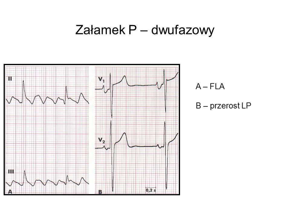 Załamek P – dwufazowy A – FLA B – przerost LP