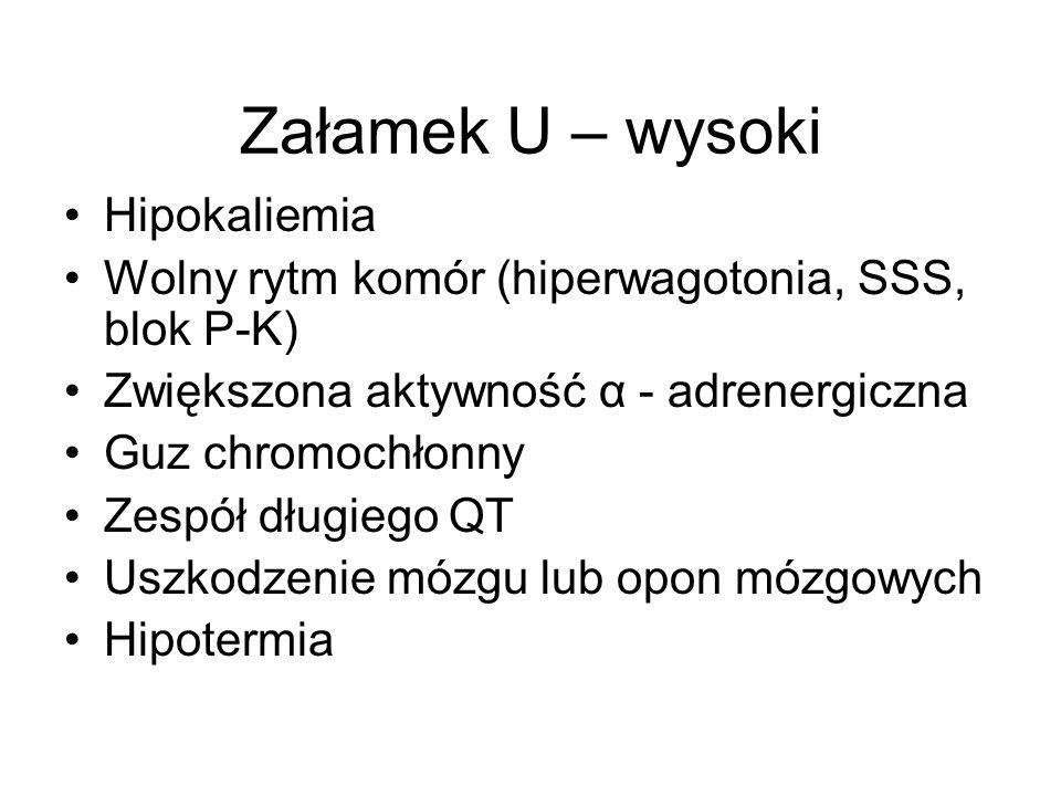 Załamek U – wysoki Hipokaliemia Wolny rytm komór (hiperwagotonia, SSS, blok P-K) Zwiększona aktywność α - adrenergiczna Guz chromochłonny Zespół długi