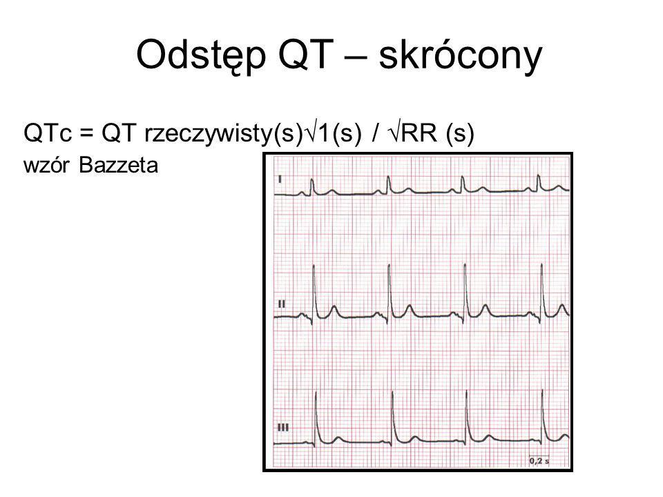 Odstęp QT – skrócony QTc = QT rzeczywisty(s)  1(s) /  RR (s) wzór Bazzeta