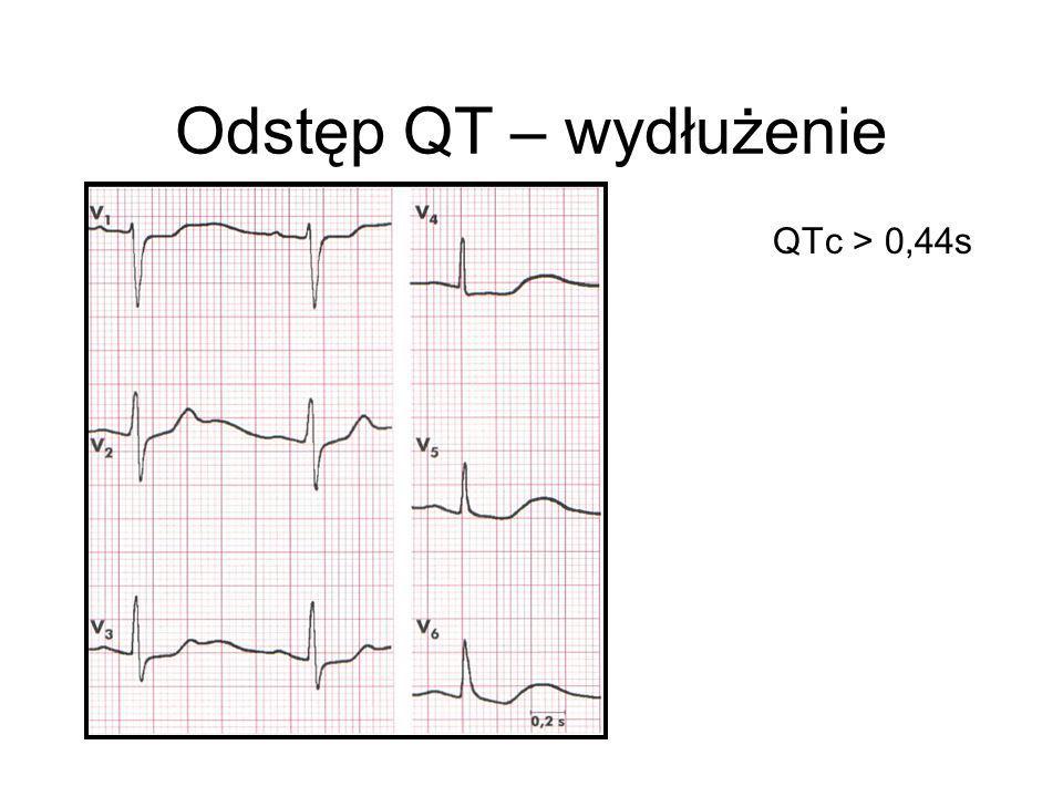 Odstęp QT – wydłużenie QTc > 0,44s