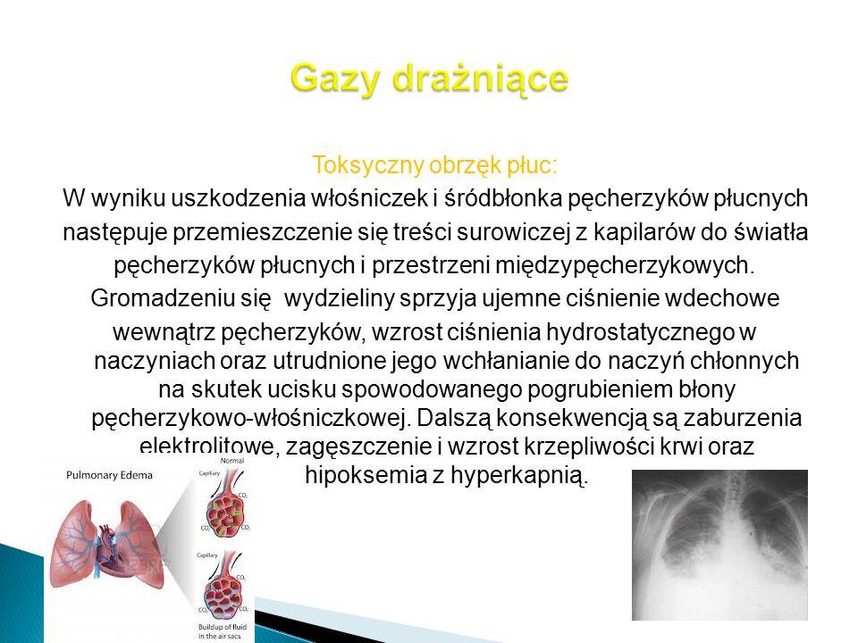 Toksyczny obrzęk płuc: W wyniku uszkodzenia włośniczek i śródbłonka pęcherzyków płucnych następuje przemieszczenie się treści surowiczej z kapilarów d