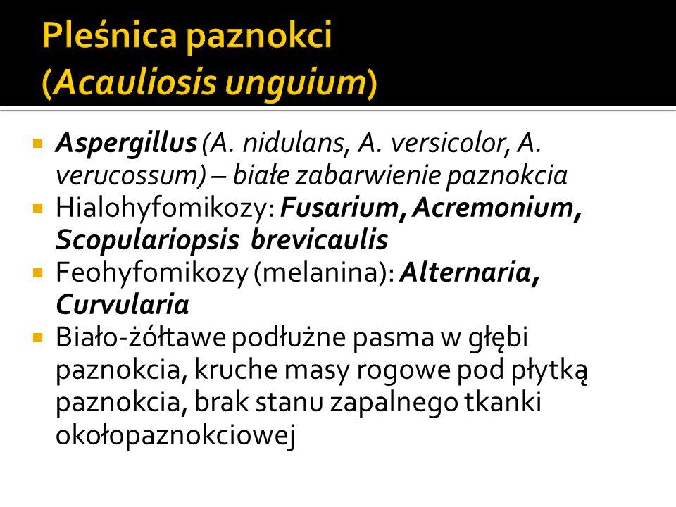  Aspergillus (A. nidulans, A. versicolor, A. verucossum) – białe zabarwienie paznokcia  Hialohyfomikozy: Fusarium, Acremonium, Scopulariopsis brevic