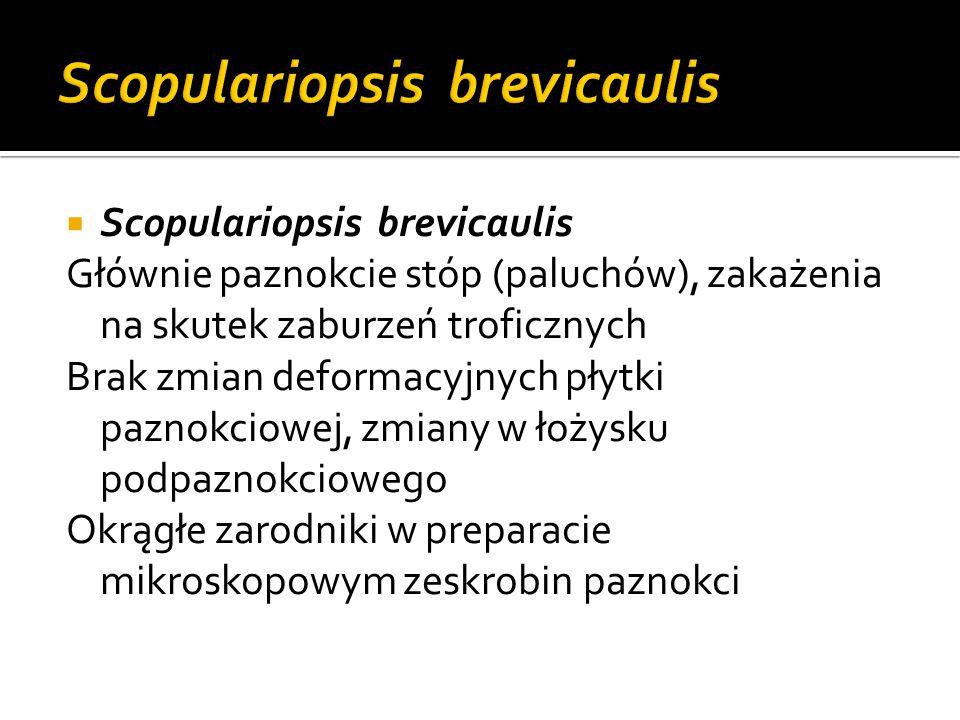  Scopulariopsis brevicaulis Głównie paznokcie stóp (paluchów), zakażenia na skutek zaburzeń troficznych Brak zmian deformacyjnych płytki paznokciowej