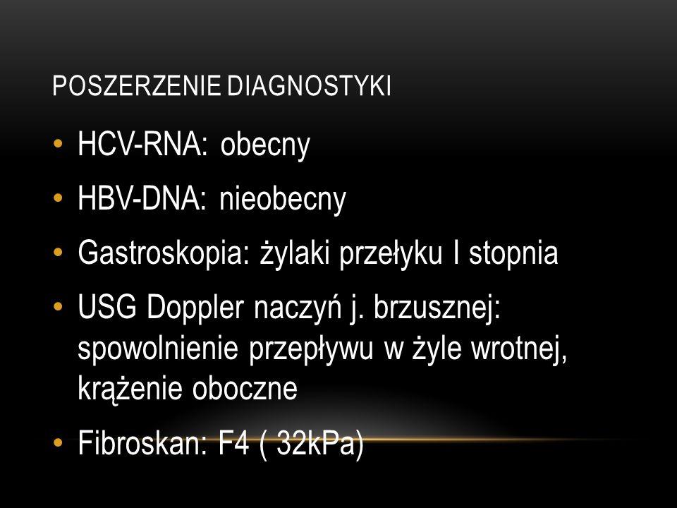 POSZERZENIE DIAGNOSTYKI HCV-RNA: obecny HBV-DNA: nieobecny Gastroskopia: żylaki przełyku I stopnia USG Doppler naczyń j. brzusznej: spowolnienie przep