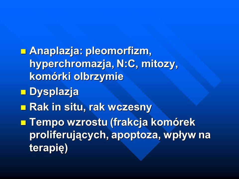 Anaplazja: pleomorfizm, hyperchromazja, N:C, mitozy, komórki olbrzymie Anaplazja: pleomorfizm, hyperchromazja, N:C, mitozy, komórki olbrzymie Dysplazj