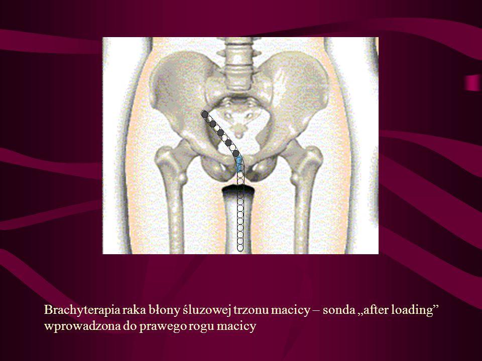 """Brachyterapia raka błony śluzowej trzonu macicy – sonda """"after loading"""" wprowadzona do prawego rogu macicy"""