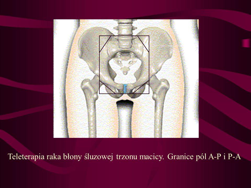 Teleterapia raka błony śluzowej trzonu macicy. Granice pól A-P i P-A