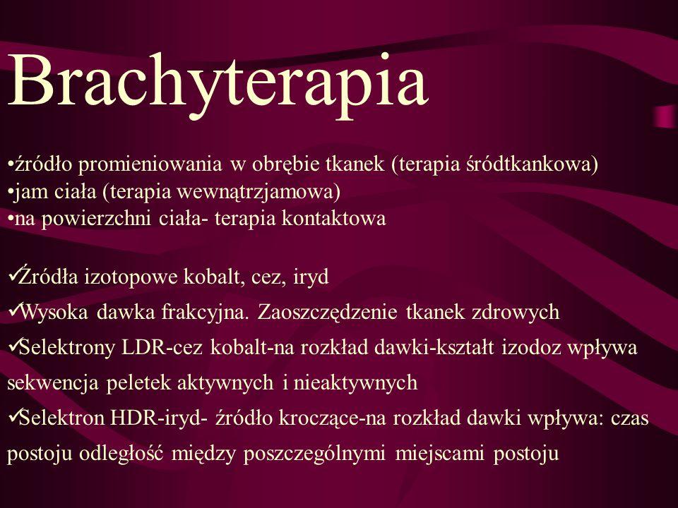 Brachyterapia źródło promieniowania w obrębie tkanek (terapia śródtkankowa) jam ciała (terapia wewnątrzjamowa) na powierzchni ciała- terapia kontaktow