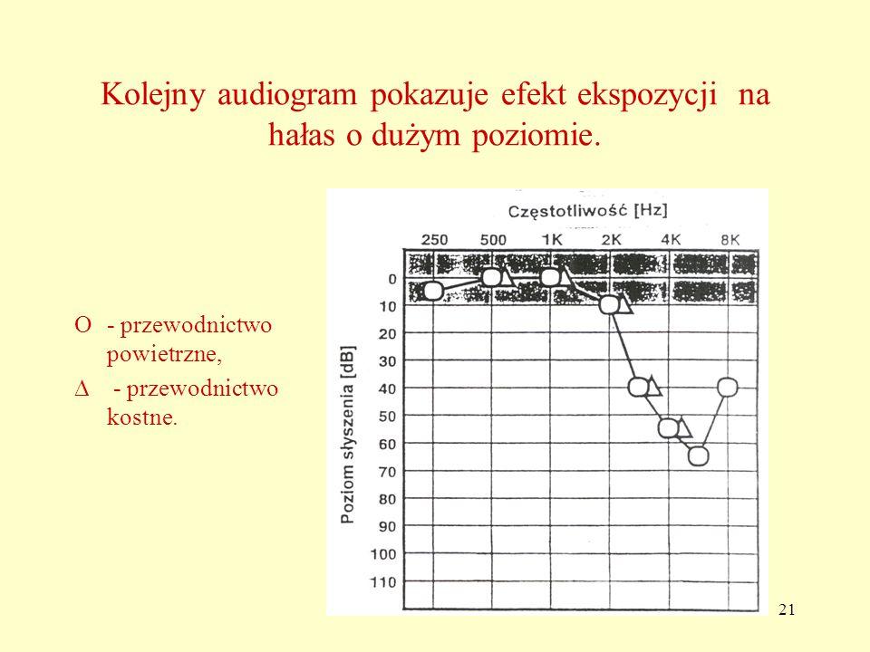21 Kolejny audiogram pokazuje efekt ekspozycji na hałas o dużym poziomie.