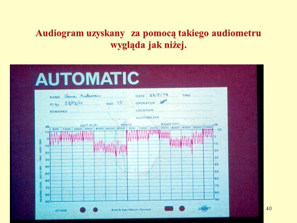 40 Audiogram uzyskany za pomocą takiego audiometru wygląda jak niżej.