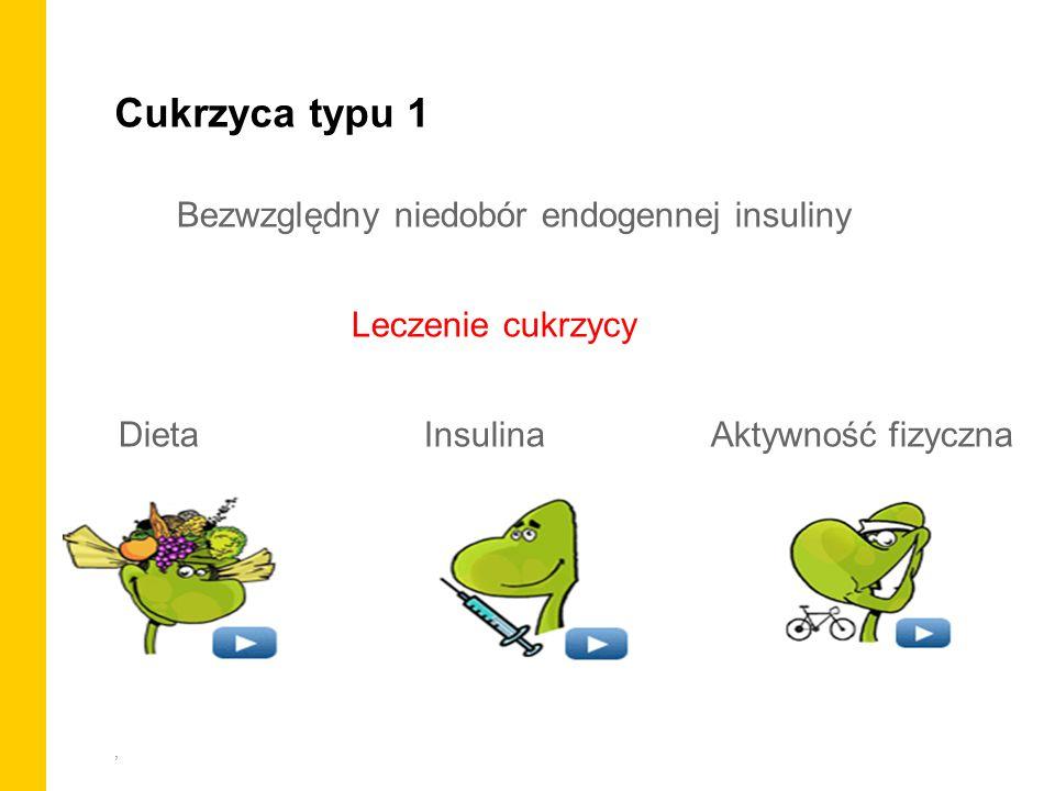 , Bezwzględny niedobór endogennej insuliny Leczenie cukrzycy Dieta Insulina Aktywność fizyczna Cukrzyca typu 1