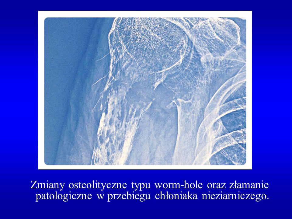 Zmiany osteolityczne typu worm-hole oraz złamanie patologiczne w przebiegu chłoniaka nieziarniczego.