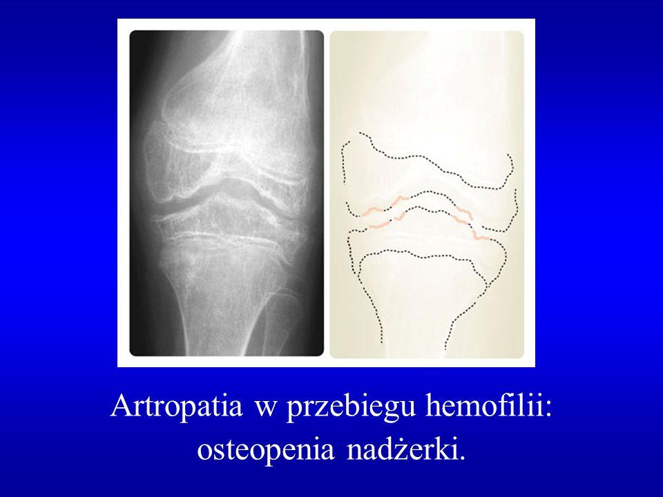 Artropatia w przebiegu hemofilii: osteopenia nadżerki.