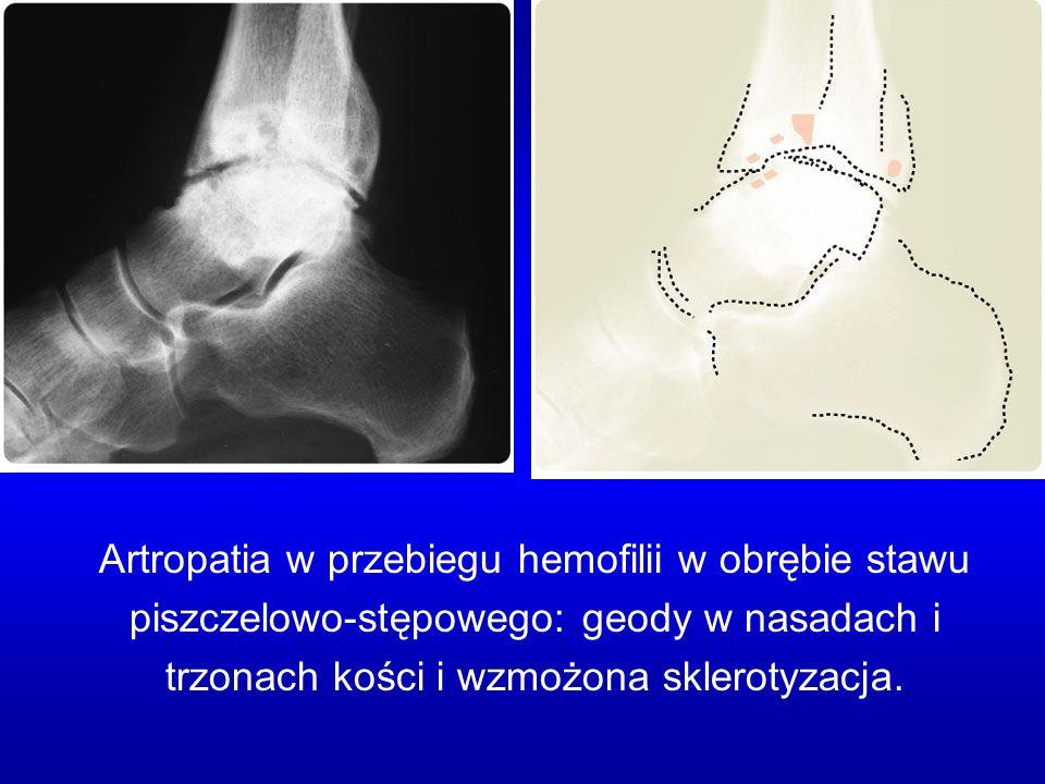 Artropatia w przebiegu hemofilii w obrębie stawu piszczelowo-stępowego: geody w nasadach i trzonach kości i wzmożona sklerotyzacja.