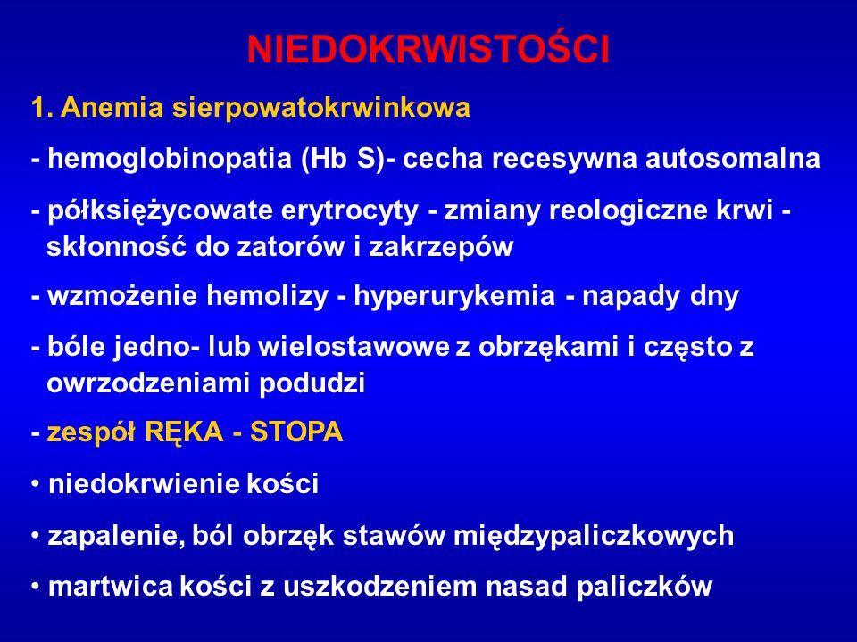 NIEDOKRWISTOŚCI 1. Anemia sierpowatokrwinkowa - hemoglobinopatia (Hb S)- cecha recesywna autosomalna - półksiężycowate erytrocyty - zmiany reologiczne