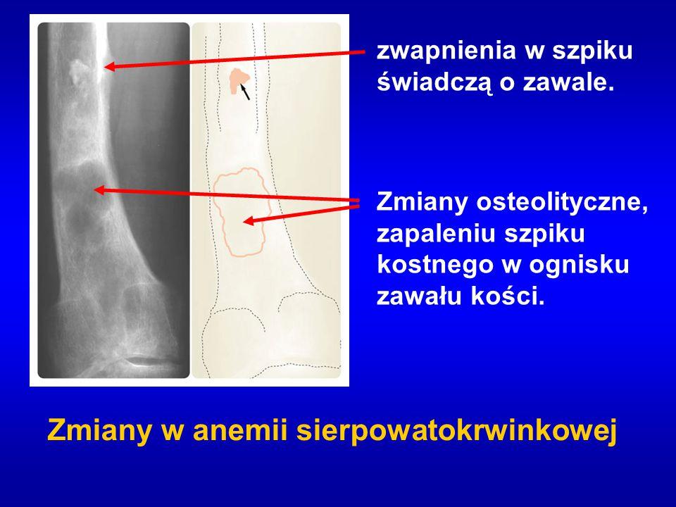 zwapnienia w szpiku świadczą o zawale. Zmiany osteolityczne, zapaleniu szpiku kostnego w ognisku zawału kości. Zmiany w anemii sierpowatokrwinkowej
