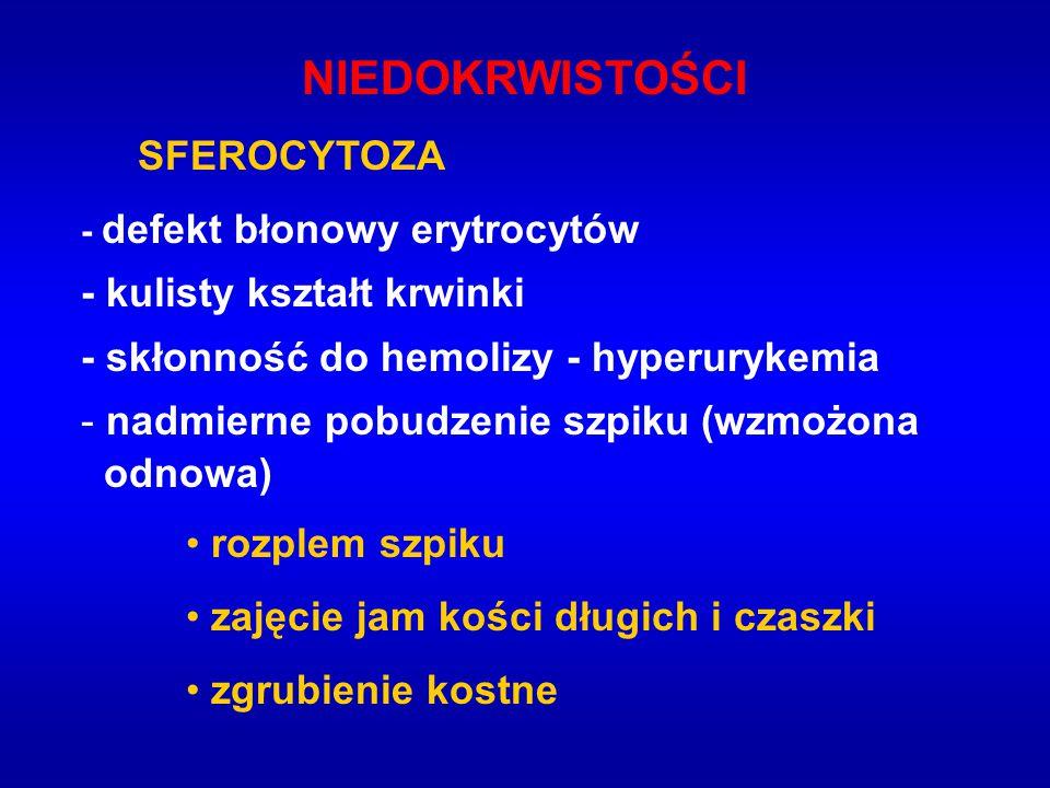 NIEDOKRWISTOŚCI SFEROCYTOZA - defekt błonowy erytrocytów - kulisty kształt krwinki - skłonność do hemolizy - hyperurykemia - nadmierne pobudzenie szpi