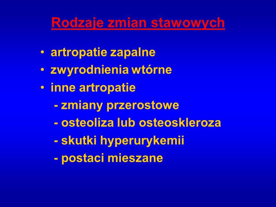PRZYCZYNY ZAPALNIA STAWÓW W CHOROBACH KRWI 1.Naciek podokostnowy lub naciek błony maziowej z wysiękiem - białaczki (ostra szpikowa, monocytarna) 2.