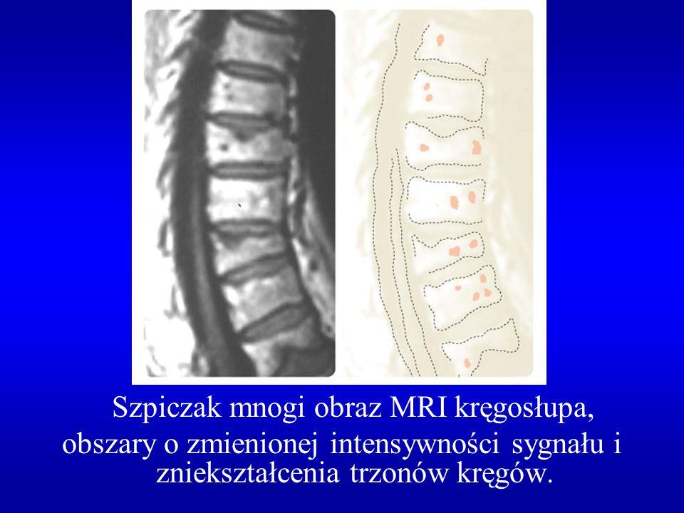 Szpiczak mnogi obraz MRI kręgosłupa, obszary o zmienionej intensywności sygnału i zniekształcenia trzonów kręgów.
