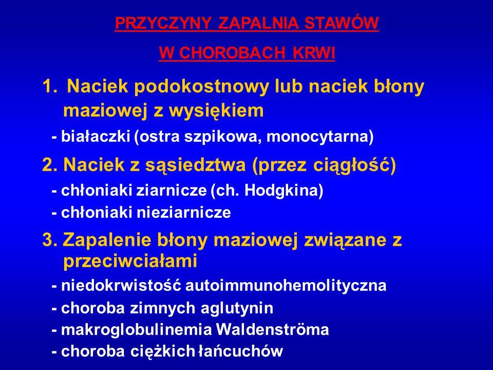PRZYCZYNY ZAPALNIA STAWÓW W CHOROBACH KRWI 1.Naciek podokostnowy lub naciek błony maziowej z wysiękiem - białaczki (ostra szpikowa, monocytarna) 2. Na