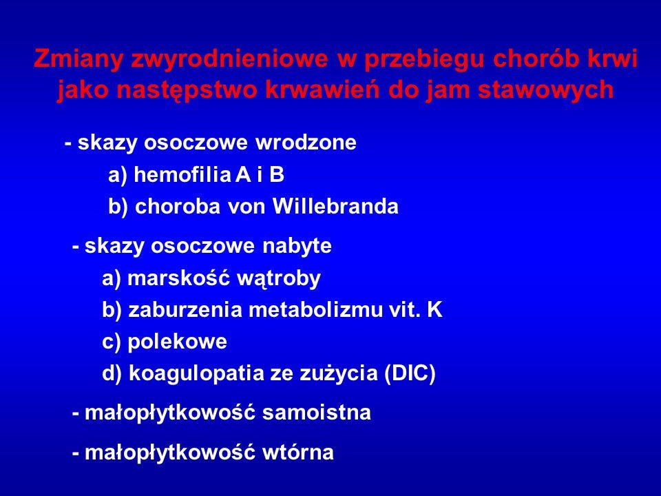 Zmiany zwyrodnieniowe w przebiegu chorób krwi jako następstwo krwawień do jam stawowych - skazy osoczowe wrodzone a) hemofilia A i B b) choroba von Willebranda - skazy osoczowe nabyte a) marskość wątroby b) zaburzenia metabolizmu vit.