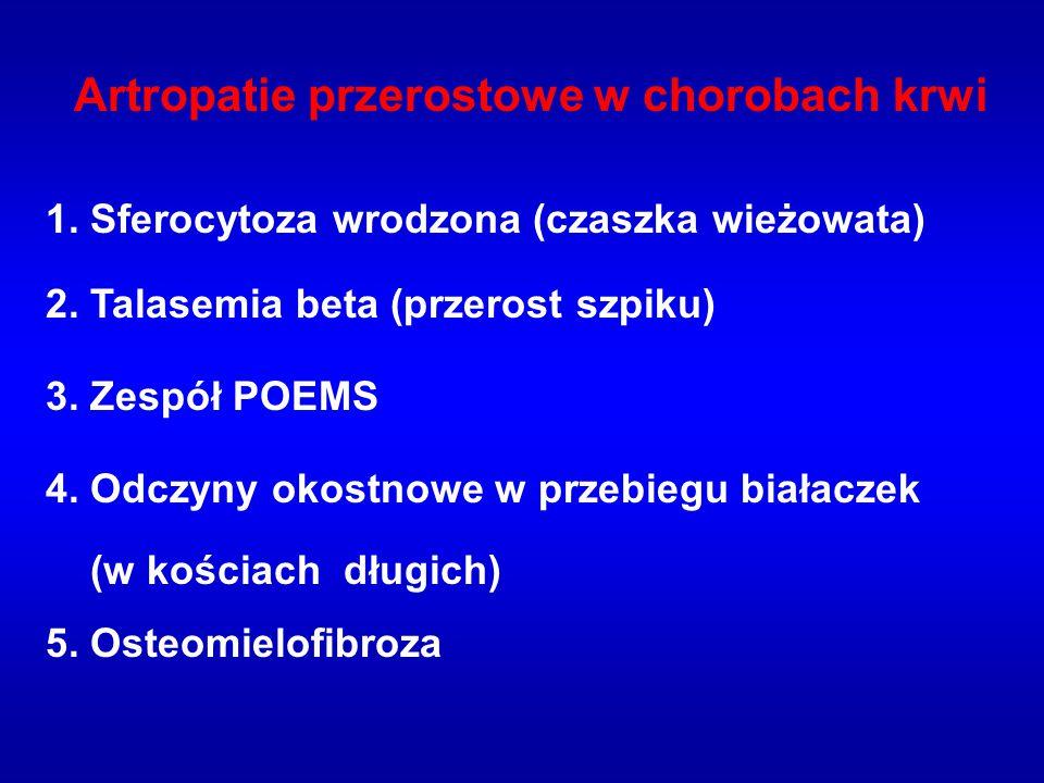 Artropatie przerostowe w chorobach krwi 1. Sferocytoza wrodzona (czaszka wieżowata) 2. Talasemia beta (przerost szpiku) 3. Zespół POEMS 4. Odczyny oko