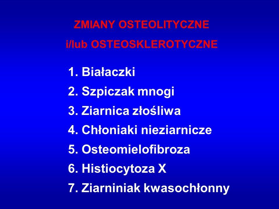ZMIANY OSTEOLITYCZNE i/lub OSTEOSKLEROTYCZNE 1. Białaczki 2. Szpiczak mnogi 3. Ziarnica złośliwa 4. Chłoniaki nieziarnicze 5. Osteomielofibroza 6. His