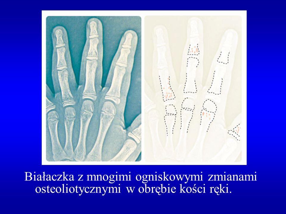 """Zmiany w układzie kostno-stawowym w szpiczaku mnogim liczne, dobrze odgraniczone ogniska osteolityczne obraz kości """"wygryzionej przez mole uogólniony zanik kostny zmiany osteosklerotyczne złamania kompresyjne trzonów kręgosłupa złamania patologiczne pozakręgosłupowe"""