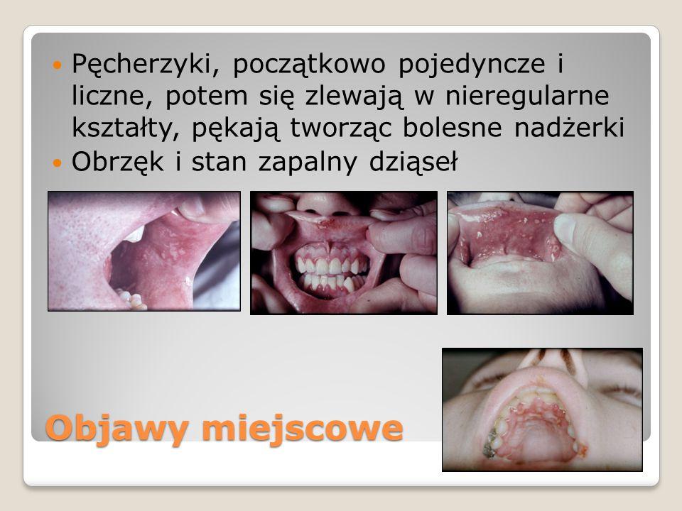 Objawy miejscowe Pęcherzyki, początkowo pojedyncze i liczne, potem się zlewają w nieregularne kształty, pękają tworząc bolesne nadżerki Obrzęk i stan zapalny dziąseł