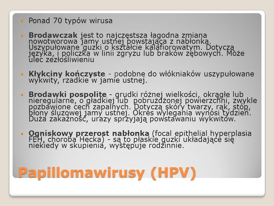 Papillomawirusy (HPV) Ponad 70 typów wirusa Brodawczak jest to najczęstsza łagodna zmiana nowotworowa jamy ustnej powstająca z nabłonka.