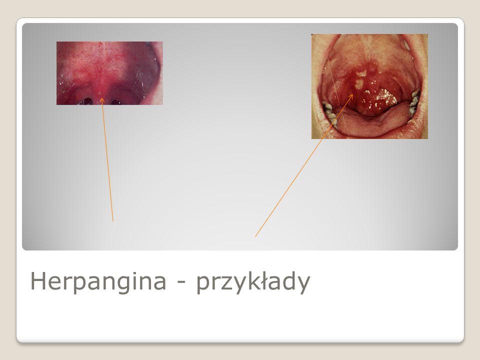 Herpangina - przykłady