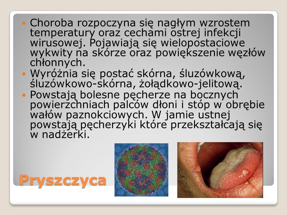 Pryszczyca Choroba rozpoczyna się nagłym wzrostem temperatury oraz cechami ostrej infekcji wirusowej. Pojawiają się wielopostaciowe wykwity na skórze