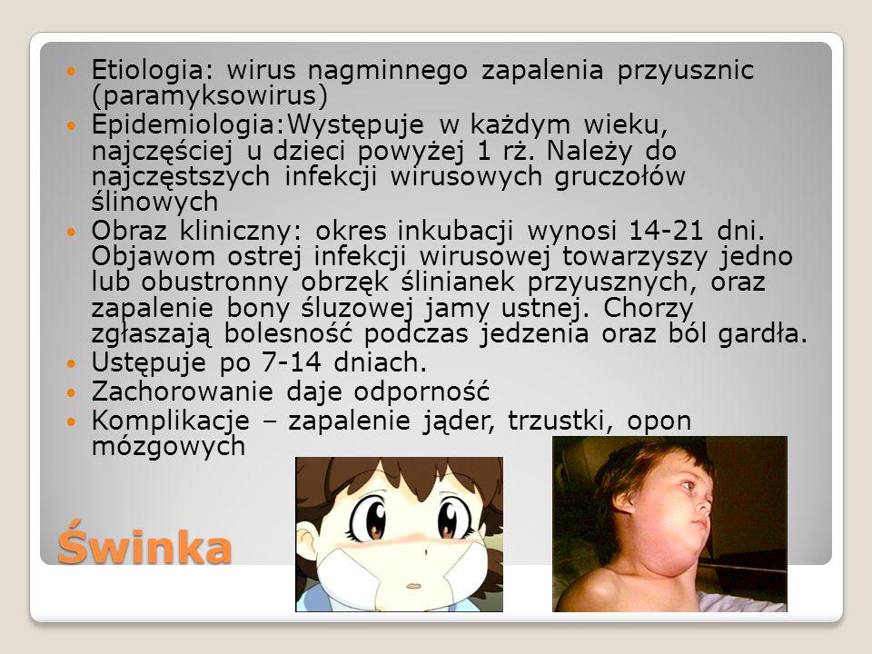 Świnka Etiologia: wirus nagminnego zapalenia przyusznic (paramyksowirus) Epidemiologia:Występuje w każdym wieku, najczęściej u dzieci powyżej 1 rż.