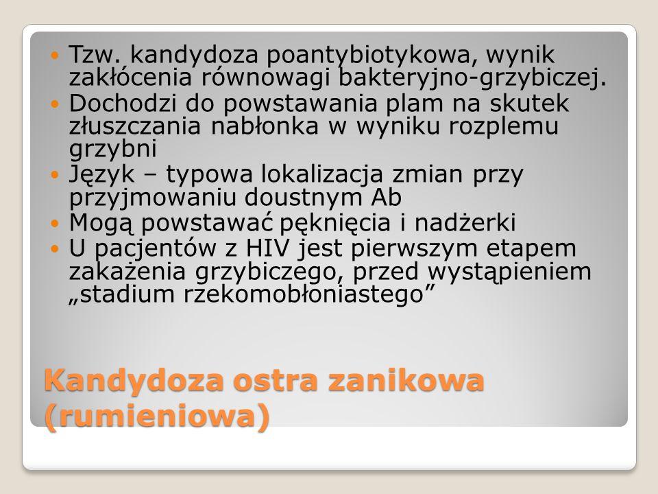 Kandydoza ostra zanikowa (rumieniowa) Tzw.