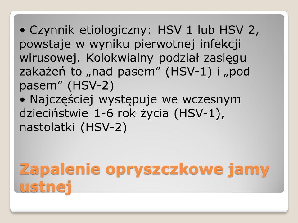 Zapalenie opryszczkowe jamy ustnej Czynnik etiologiczny: HSV 1 lub HSV 2, powstaje w wyniku pierwotnej infekcji wirusowej. Kolokwialny podział zasięgu