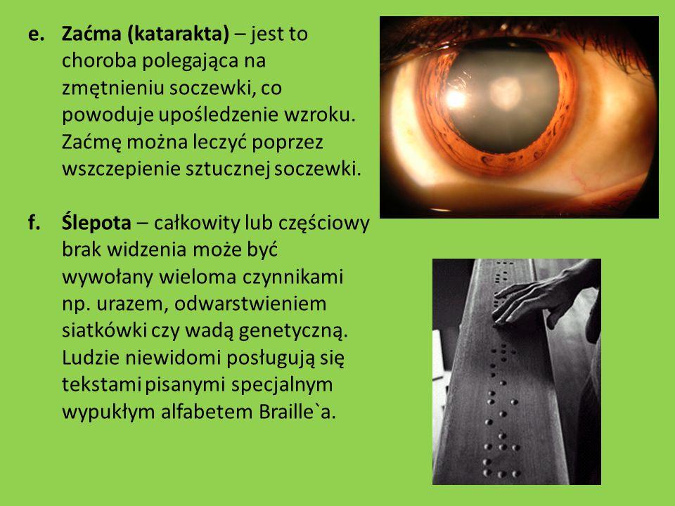e.Zaćma (katarakta) – jest to choroba polegająca na zmętnieniu soczewki, co powoduje upośledzenie wzroku. Zaćmę można leczyć poprzez wszczepienie sztu