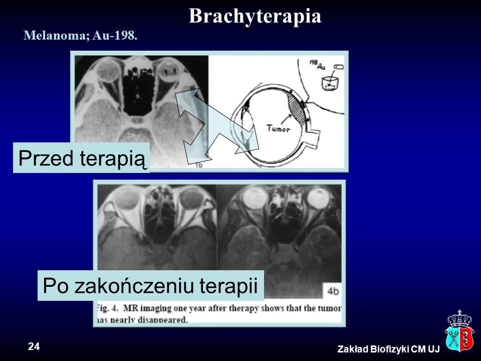 24 Brachyterapia Zakład Biofizyki CM UJ Melanoma; Au-198. Przed terapią Po zakończeniu terapii